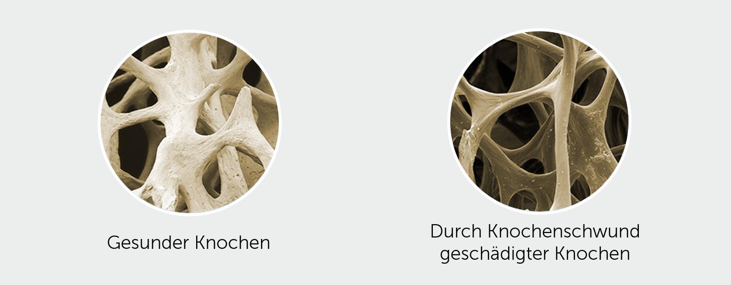 Bone-Knochenschwund