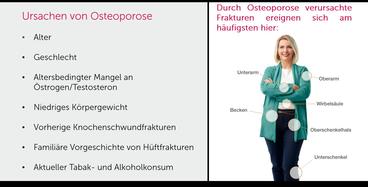 Osteoporose_Ursachen