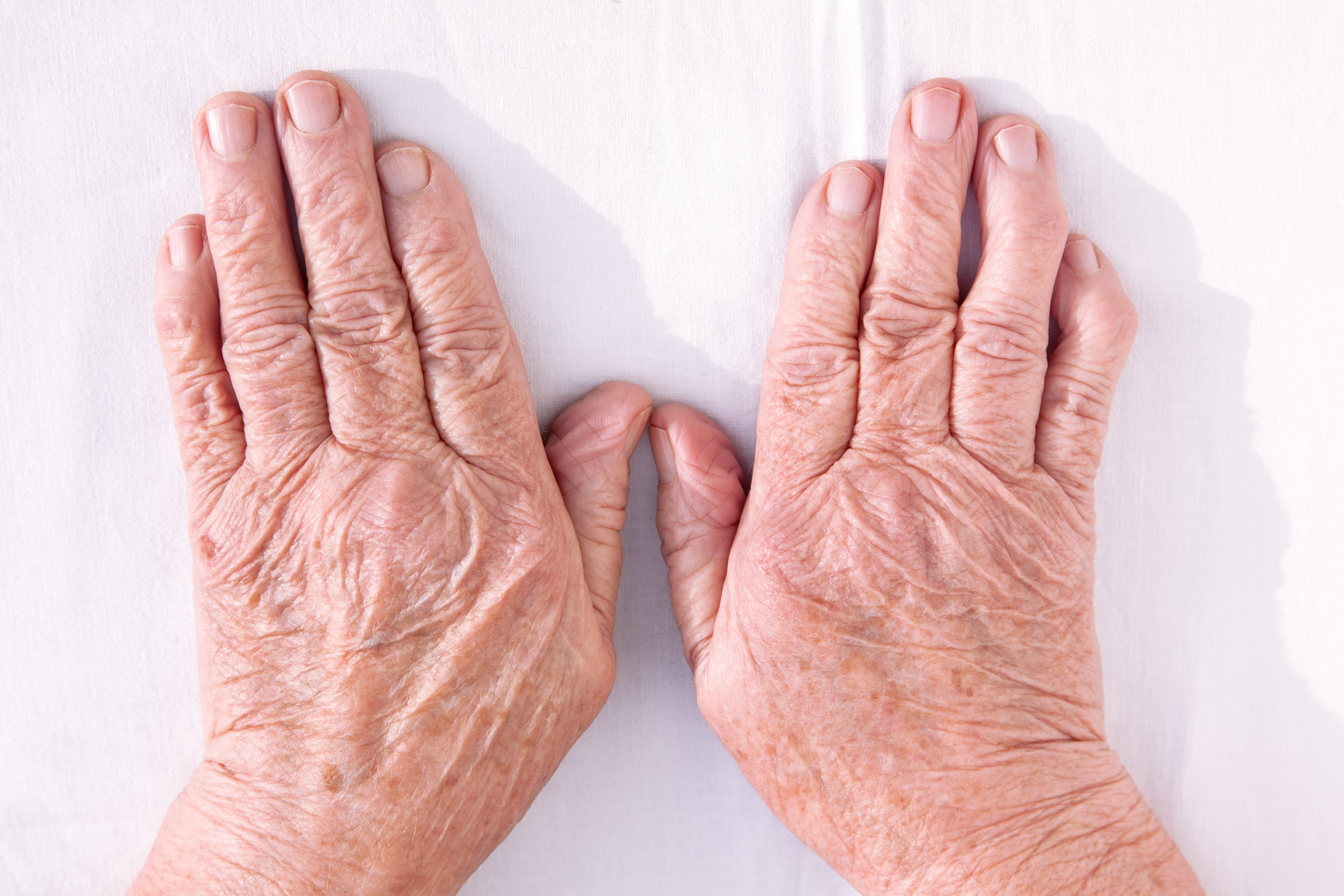 An old, wrinkled pair of hands